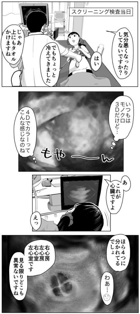 妊婦スクリーニング検査当日。モノクロじゃなくてカラーの映像だ。これが赤ちゃんの心臓ですよ。医師「ほら右心房左心房右心室左心室です。どこも以上ないですね」妊娠出産育児エッセイ漫画「久永家」久永沙和