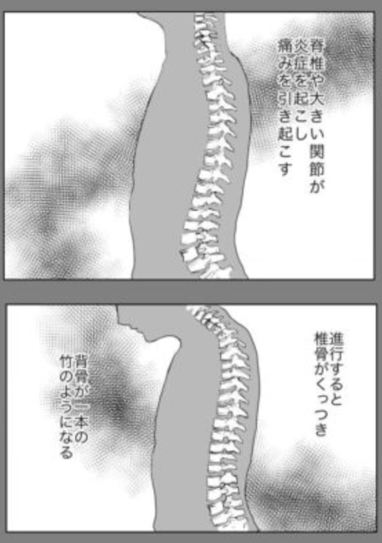 →エッセイ漫画「久永家」3話 難病持ちの妊婦。強直性脊椎炎は脊椎や大きい関節が炎症を起こし痛みを引き起こす。進行すると椎骨がくっつき背骨が一本の丈のようになる。